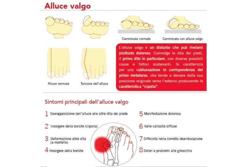 Alluce Valgo - Plantari Ortopedici Correttivi