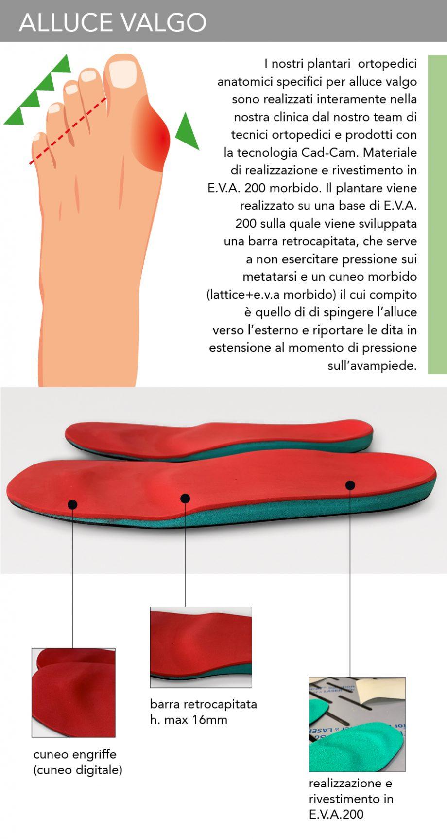 Alluce Valgo - Plantari Ortopedici Anatomici 5