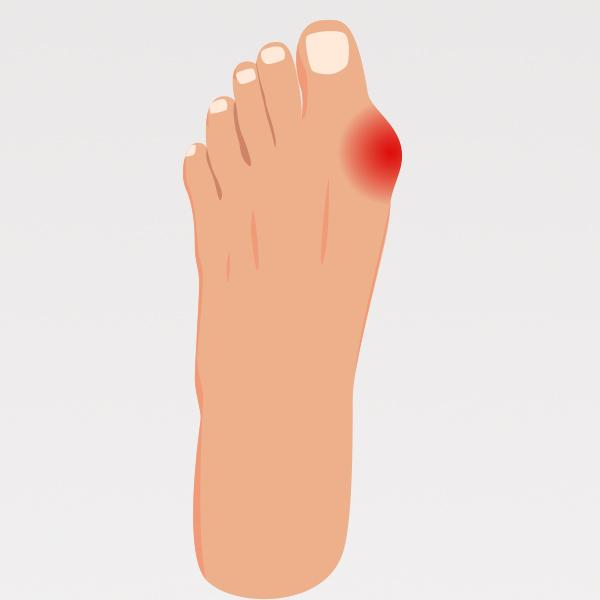 Alluce Valgo - Plantari Ortopedici Anatomici 1