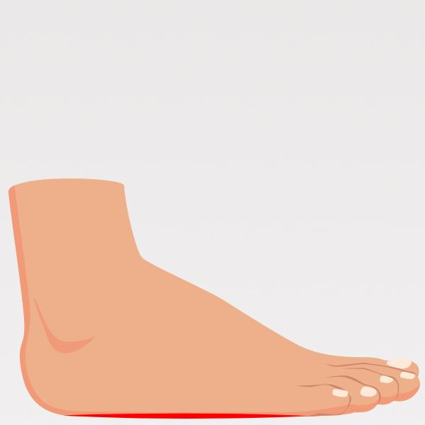 Piede Piatto - Plantari Ortopedici Anatomici 1