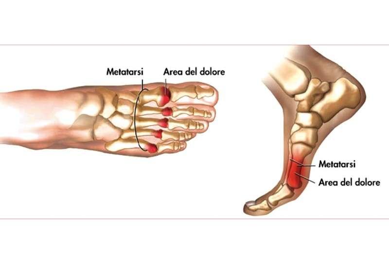 Metatarsalgia-PlantariOrtopedici Anatomici