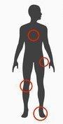 sintomi del piede piatto in età adulta