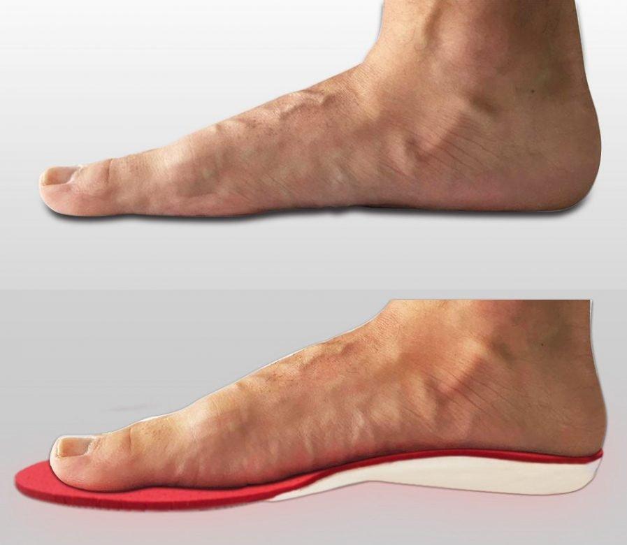 convivere con il piede piatto