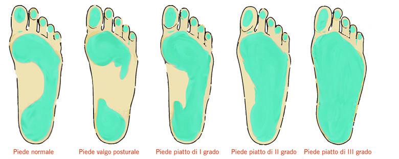 3 stadi la gravità del piede piatto