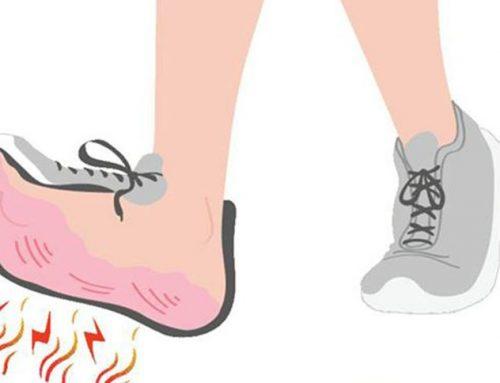 Bruciore ai piedi?Ecco alcuni consigli semplici da mettere in pratica subito