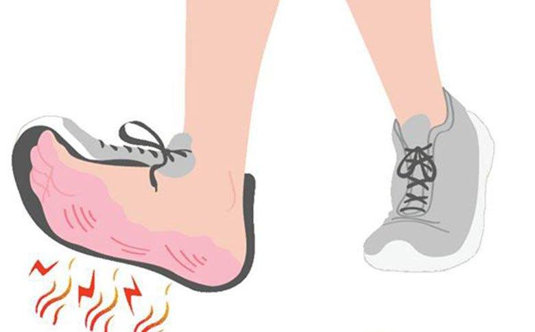 Bruciore ai piedi consigli