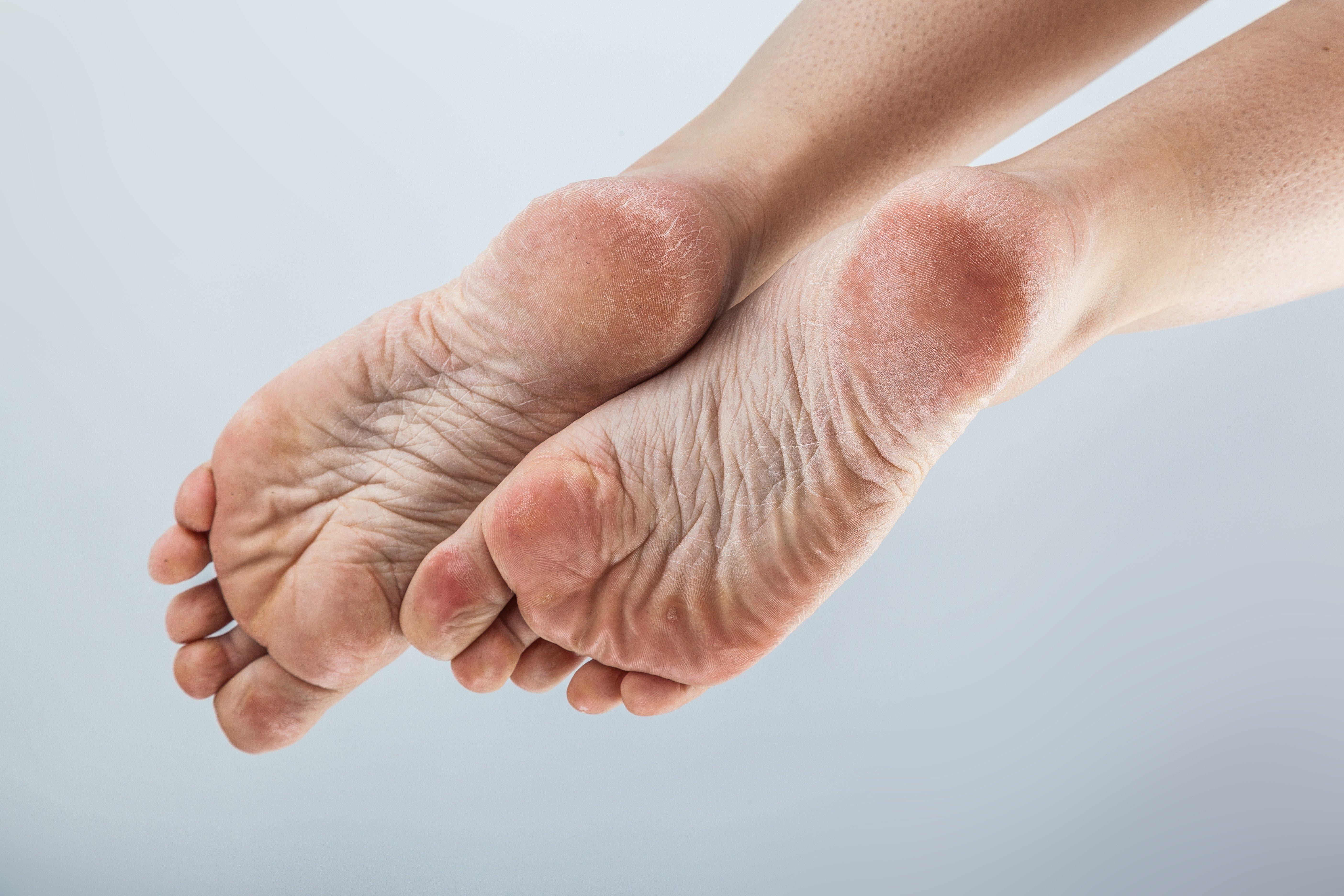 Metatarsalgia: cure e rimedi naturali 3