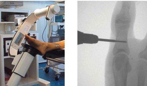 La Correzione Dell' Alluce Valgo In Microchirurgia Percutanea 2