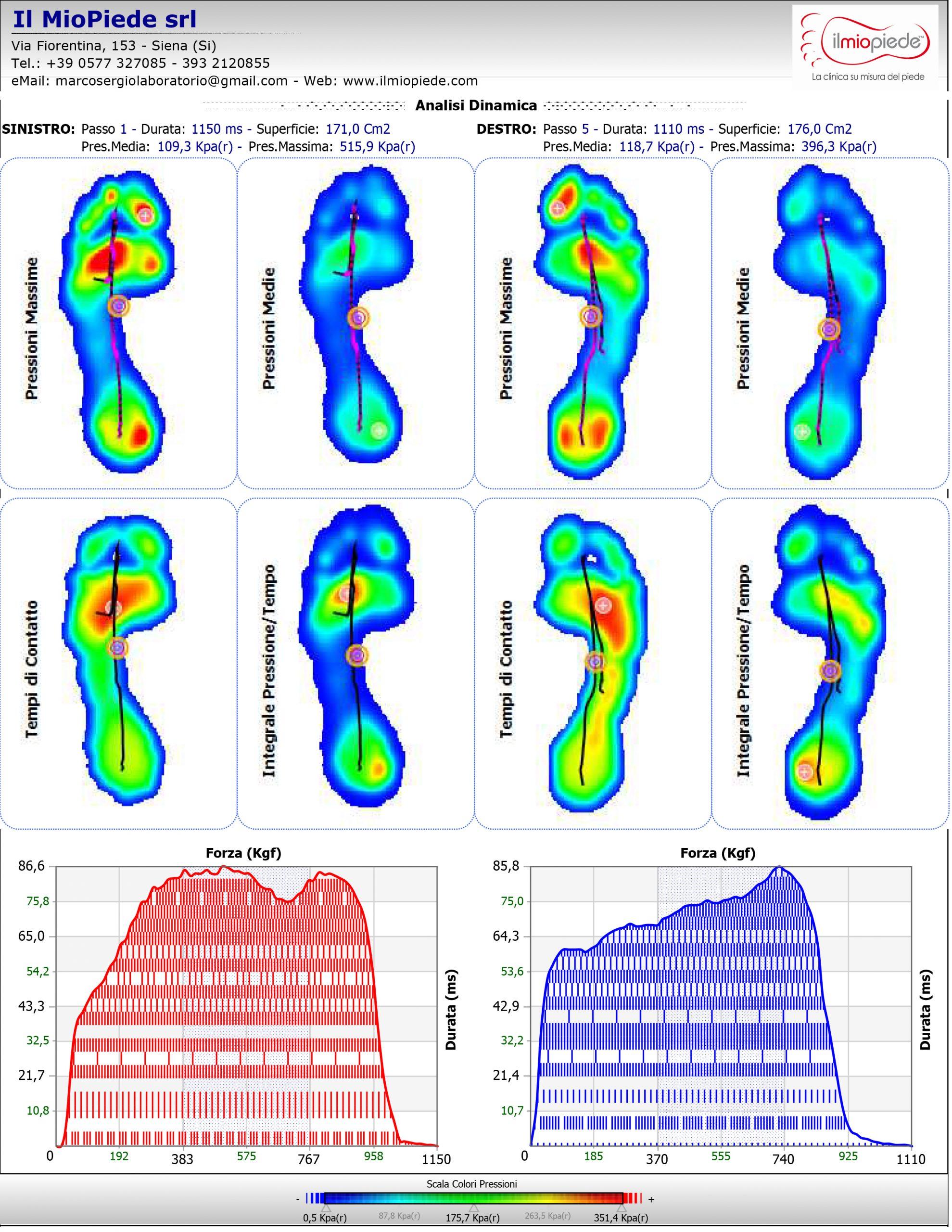 Analisi Computerizzata del Passo - Baropodometria 9